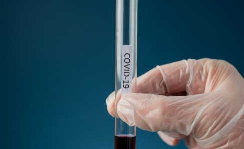 Approved COVID-19 Testing Options from the Ministry of Health & Wellness
